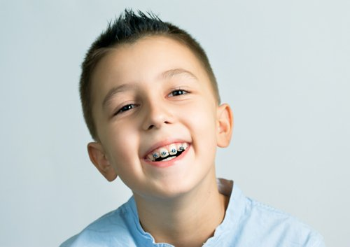 orthodontic treatment at a young age